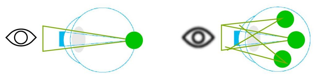 astigmatismo-esquema-optilens-puerto-montt